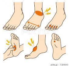 足の甲 痛い